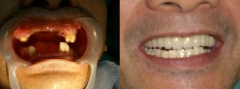 Ronaldo Lareta - Mini Dental Implants